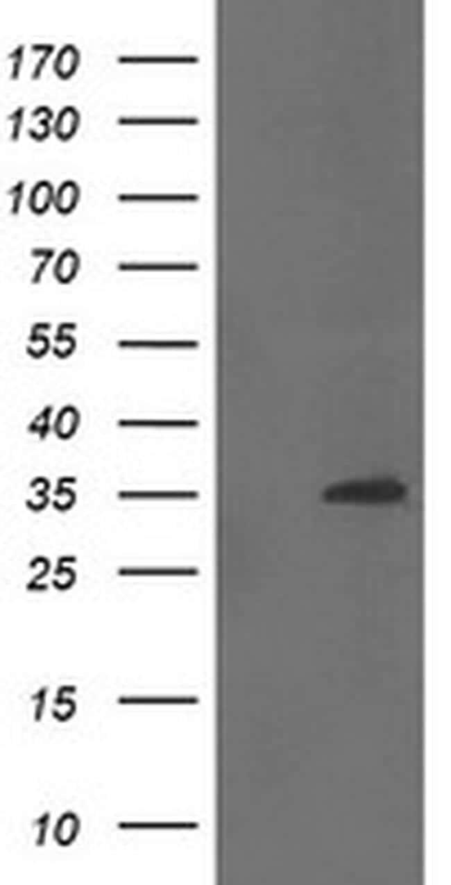 CGI-62 Antibody in Western Blot (WB)