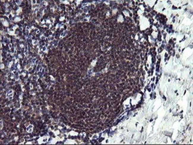 PPIL3 Antibody in Immunohistochemistry (Paraffin) (IHC (P))