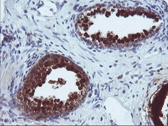 CMPK1 Antibody in Immunohistochemistry (Paraffin) (IHC (P))