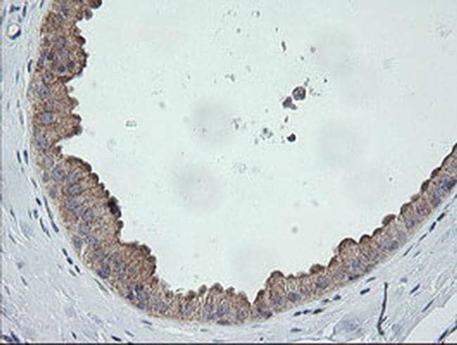 CATIP Antibody in Immunohistochemistry (Paraffin) (IHC (P))