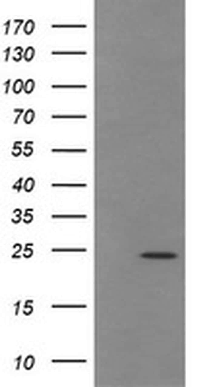 TRAPPC4 Antibody in Western Blot (WB)