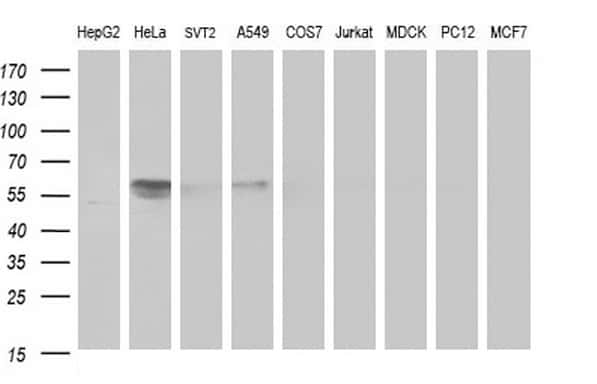 DIXDC1 Antibody in Western Blot (WB)