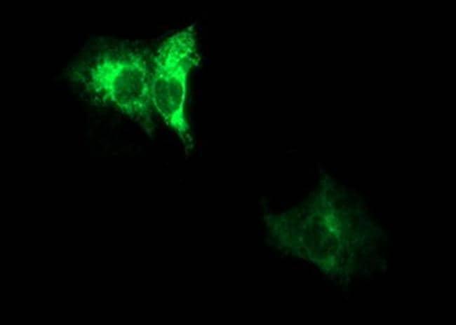 ADAMTS8 Antibody in Immunocytochemistry (ICC)