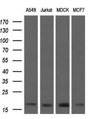 ARPC5 Antibody in Western Blot (WB)