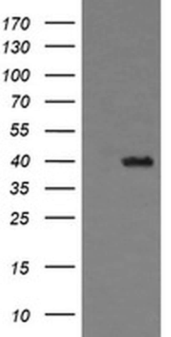 THUMPD1 Antibody in Western Blot (WB)