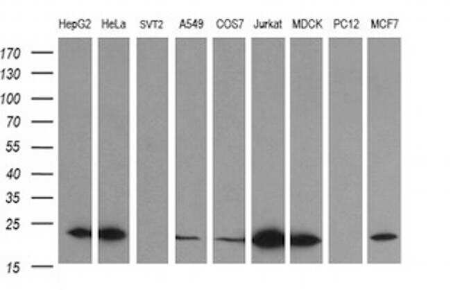 LZIC Antibody in Western Blot (WB)