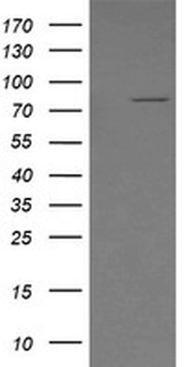 SESTD1 Antibody in Western Blot (WB)