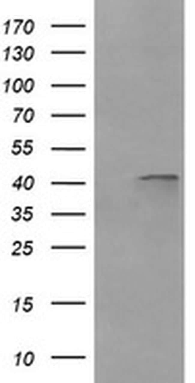 PARVA Antibody in Western Blot (WB)