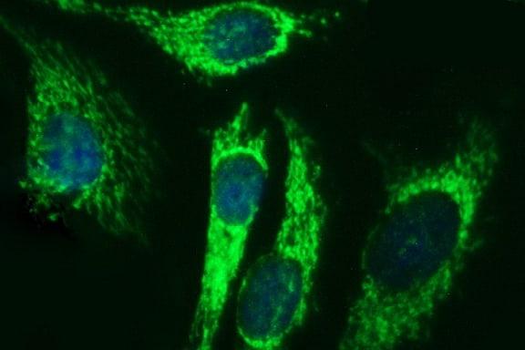 ACAA2 Antibody in Immunocytochemistry (ICC)