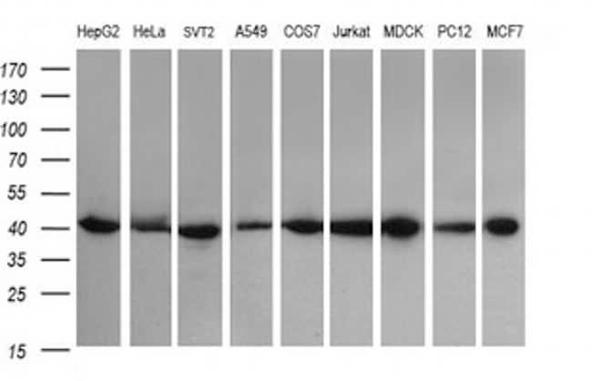 ACAA2 Antibody in Western Blot (WB)