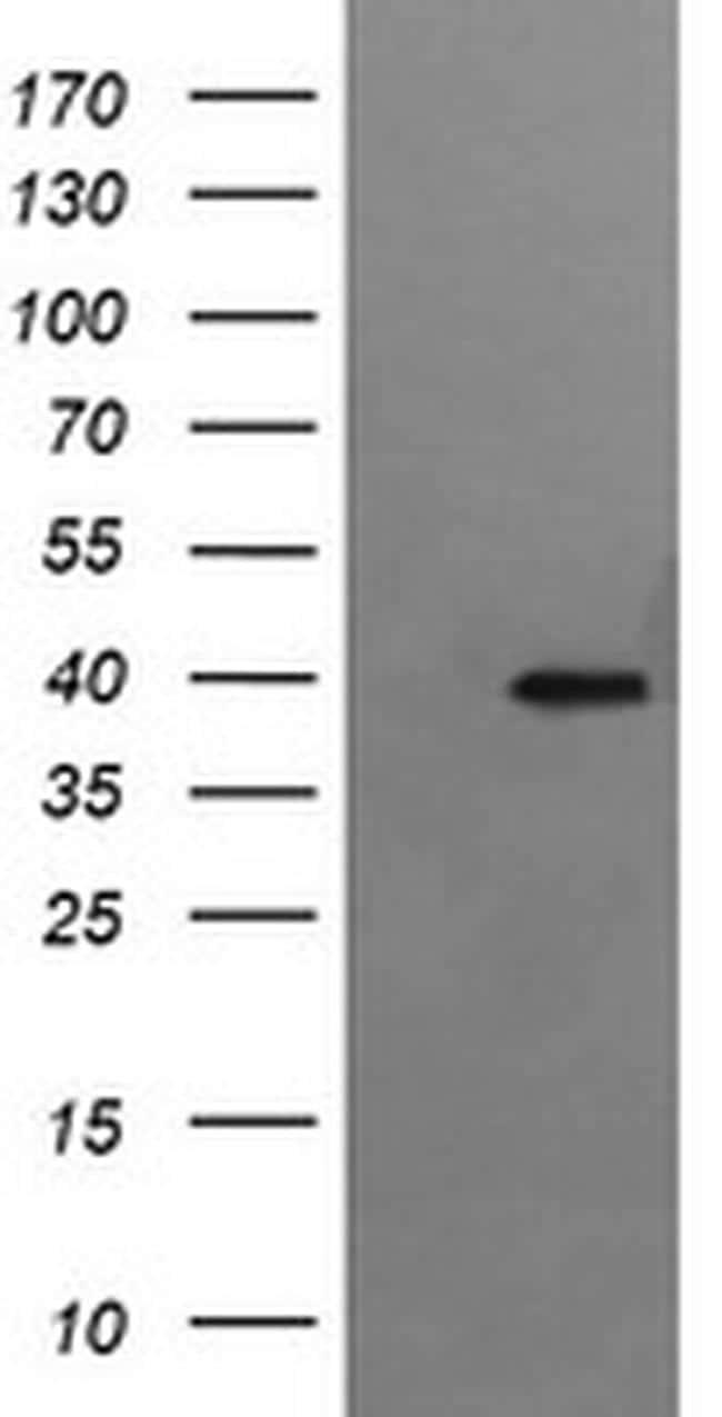RFC4 Antibody in Western Blot (WB)