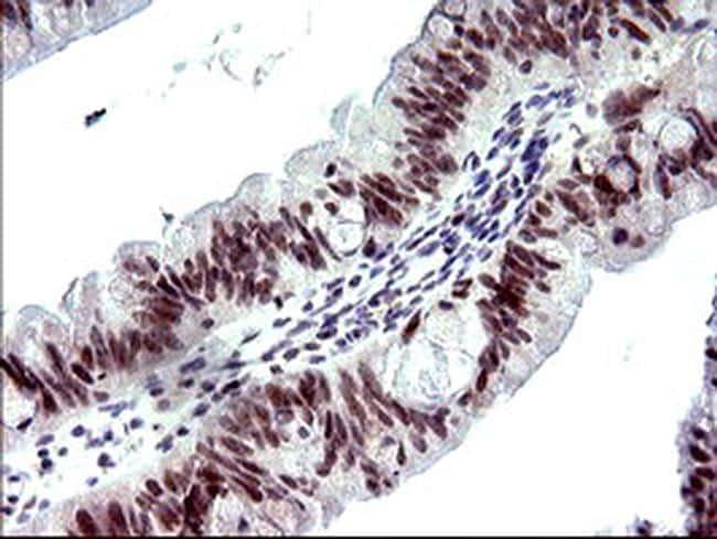 PMS2 Antibody in Immunohistochemistry (Paraffin) (IHC (P))