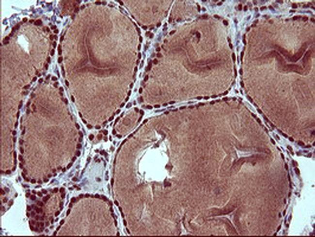 RAPGEF1 Antibody in Immunohistochemistry (Paraffin) (IHC (P))