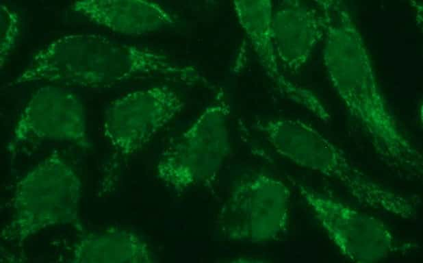 POLR3GL Antibody in Immunocytochemistry (ICC)