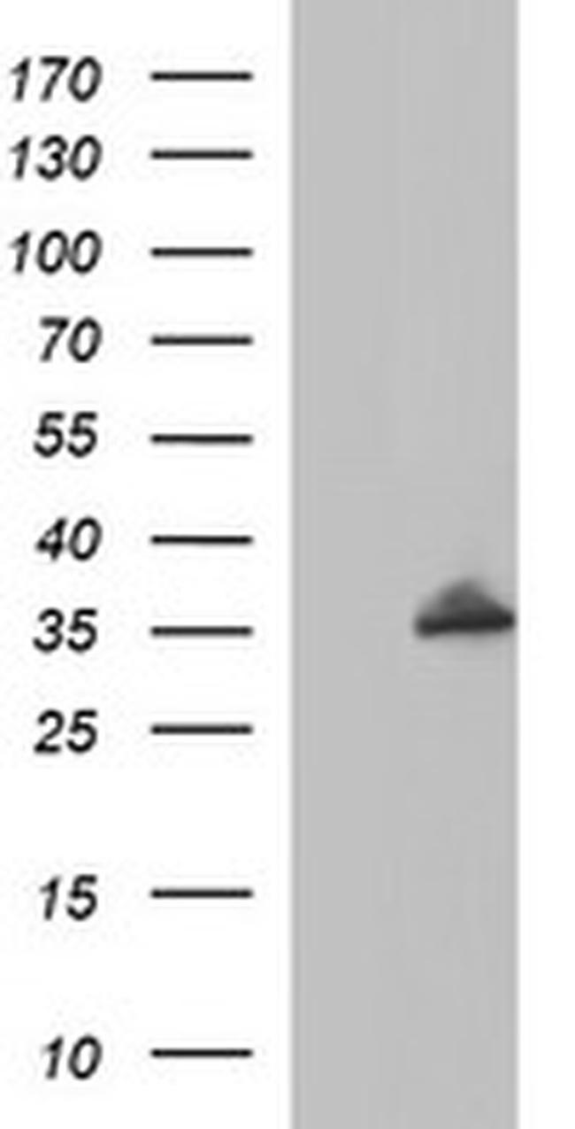 POLR3GL Antibody in Western Blot (WB)