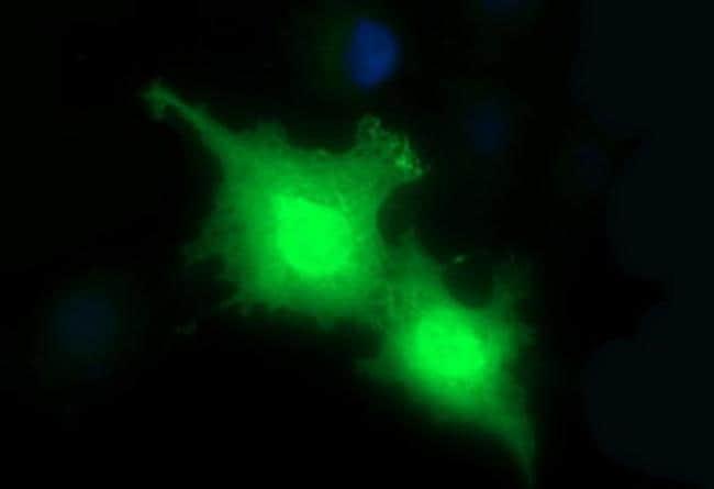 HRASLS3 Antibody in Immunocytochemistry (ICC)