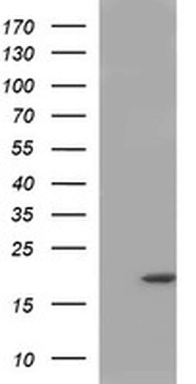 HRASLS3 Antibody in Western Blot (WB)