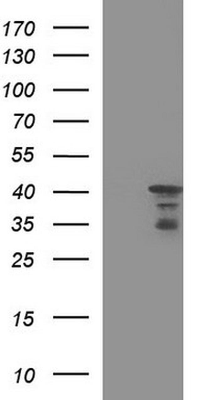 HERPUD1 Antibody in Western Blot (WB)
