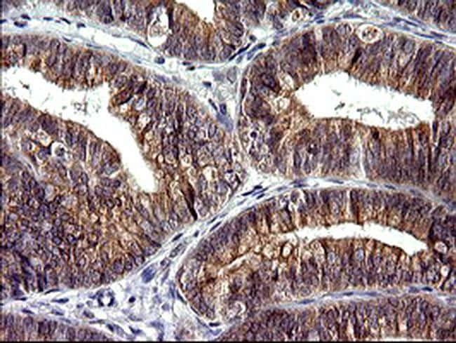CHAC1 Antibody in Immunohistochemistry (Paraffin) (IHC (P))