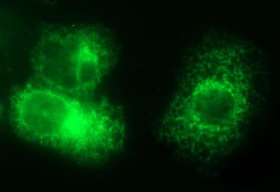 VEGFB Antibody in Immunocytochemistry (ICC)