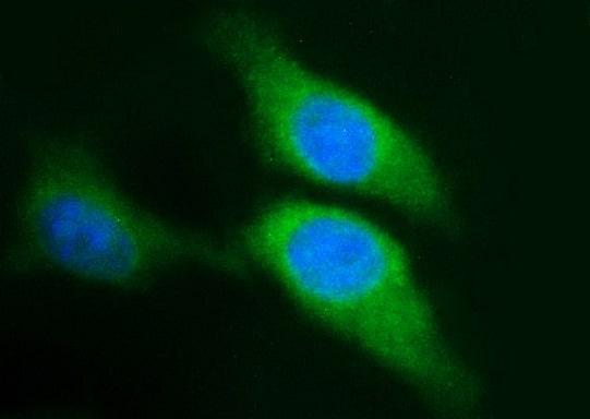 SPHK1 Antibody in Immunocytochemistry (ICC)