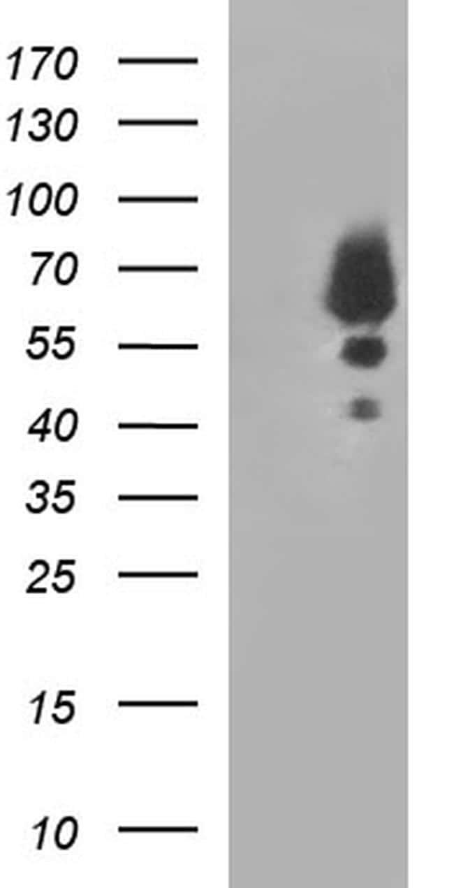 SCP2 Antibody in Western Blot (WB)