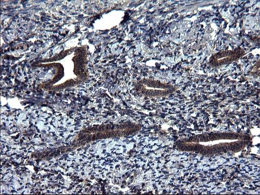SCRN1 Antibody in Immunohistochemistry (Paraffin) (IHC (P))