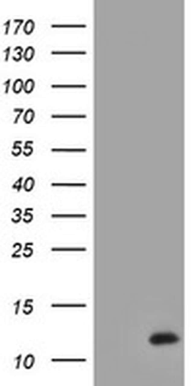 XTP4 Antibody in Western Blot (WB)
