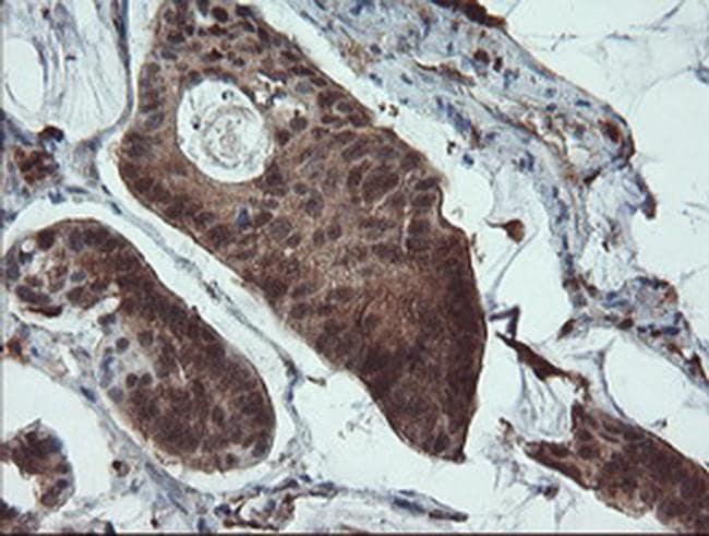 PYCARD Antibody in Immunohistochemistry (Paraffin) (IHC (P))