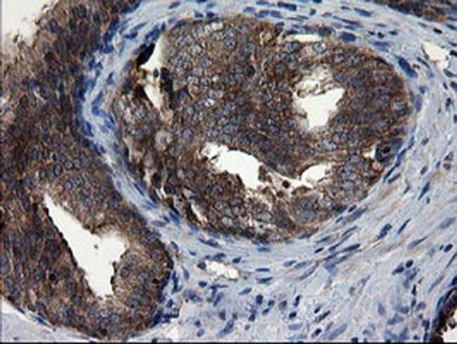 CNOT4 Antibody in Immunohistochemistry (Paraffin) (IHC (P))