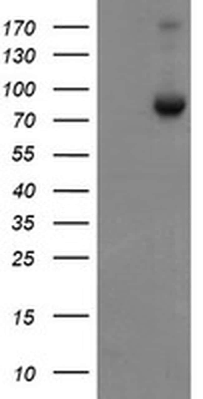 SnoN Antibody in Western Blot (WB)