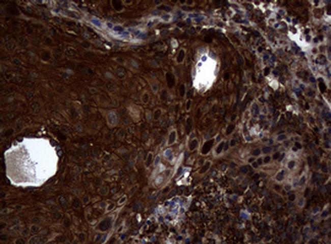 SnoN Antibody in Immunohistochemistry (Paraffin) (IHC (P))