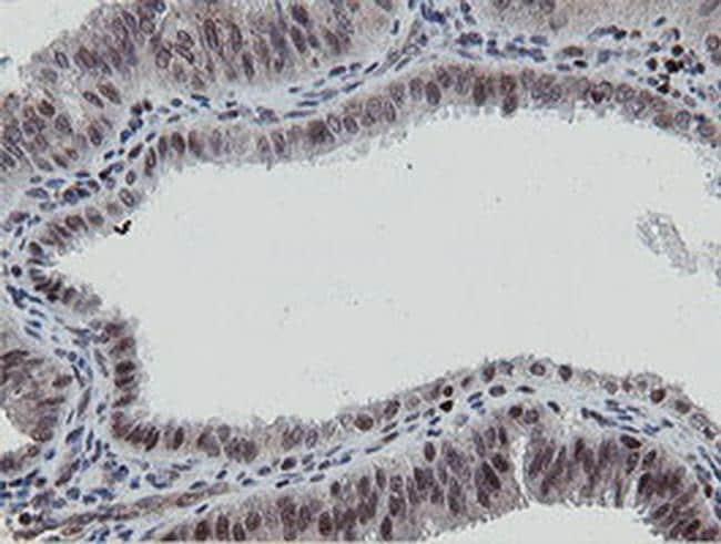 MIPEP Antibody in Immunohistochemistry (Paraffin) (IHC (P))