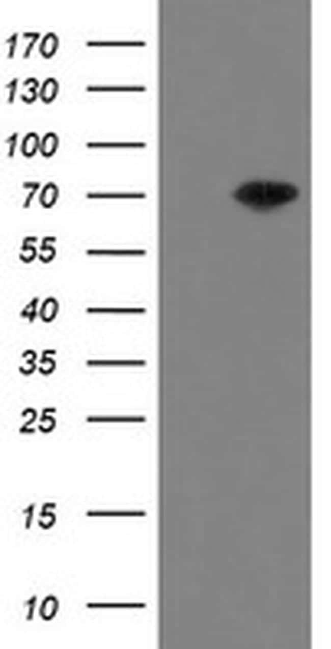 MIPEP Antibody in Western Blot (WB)