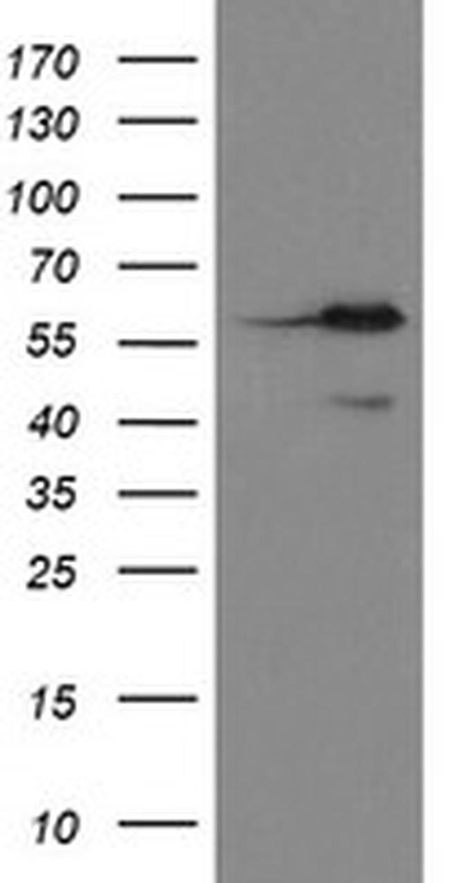 METAP2 Antibody in Western Blot (WB)