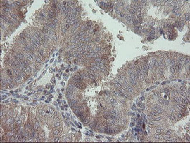 RIP1 Antibody in Immunohistochemistry (Paraffin) (IHC (P))