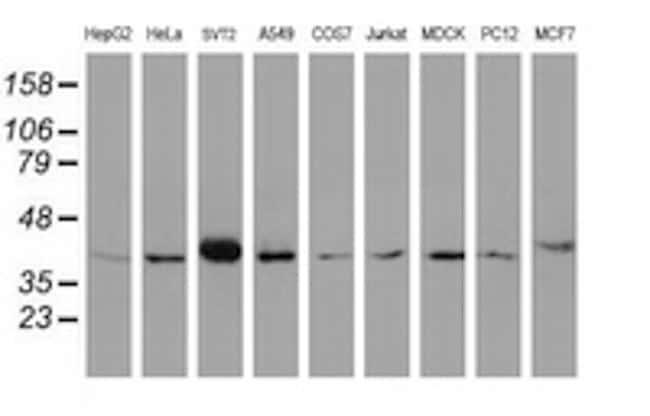 A4GNT Antibody in Western Blot (WB)