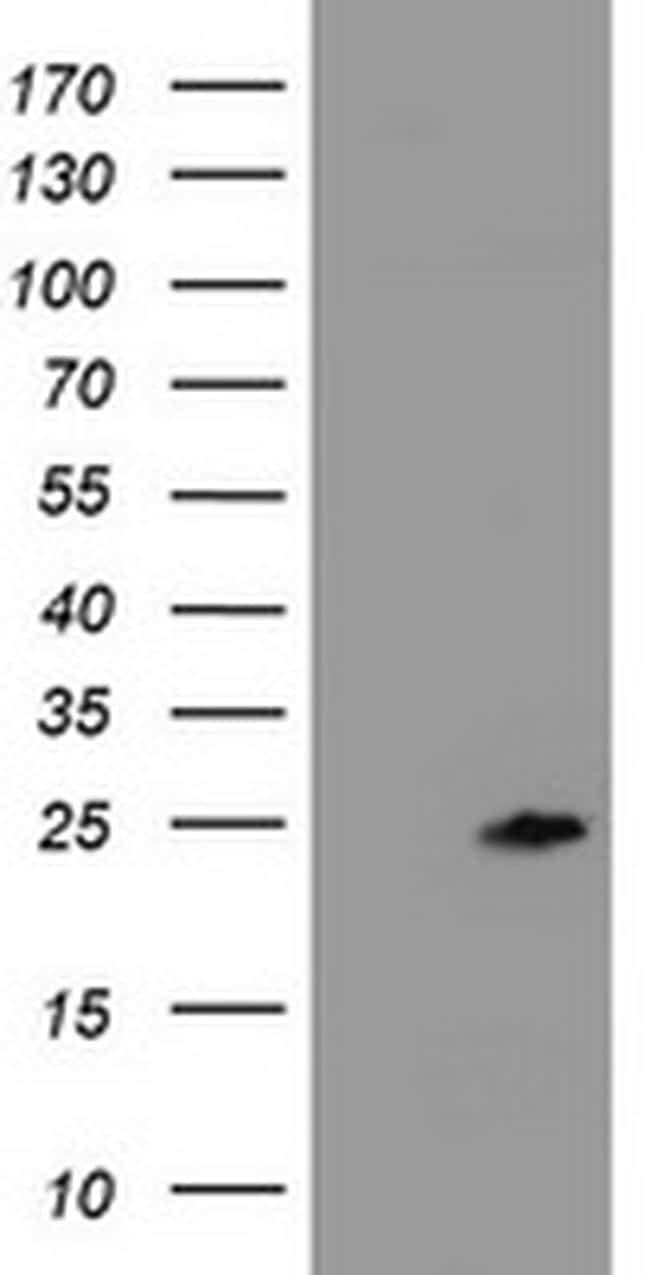 ZFAND5 Antibody in Western Blot (WB)