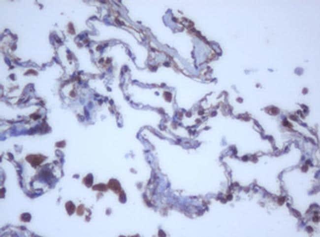 DDX59 Antibody in Immunohistochemistry (Paraffin) (IHC (P))