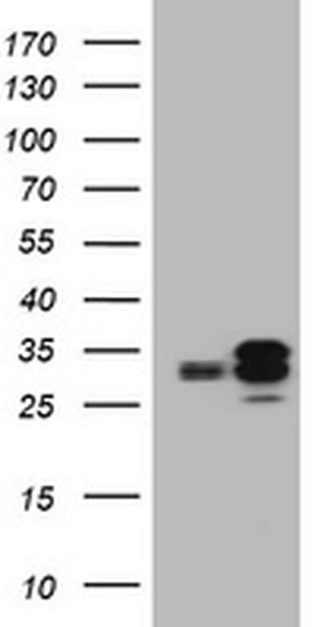 PPT1 Antibody in Western Blot (WB)