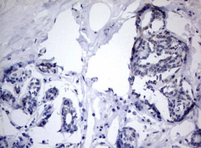 TIA-1 Antibody in Immunohistochemistry (Paraffin) (IHC (P))