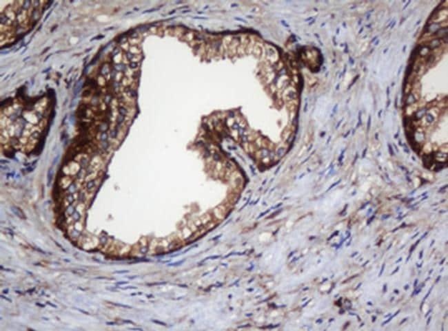 SERBP1 Antibody in Immunohistochemistry (Paraffin) (IHC (P))