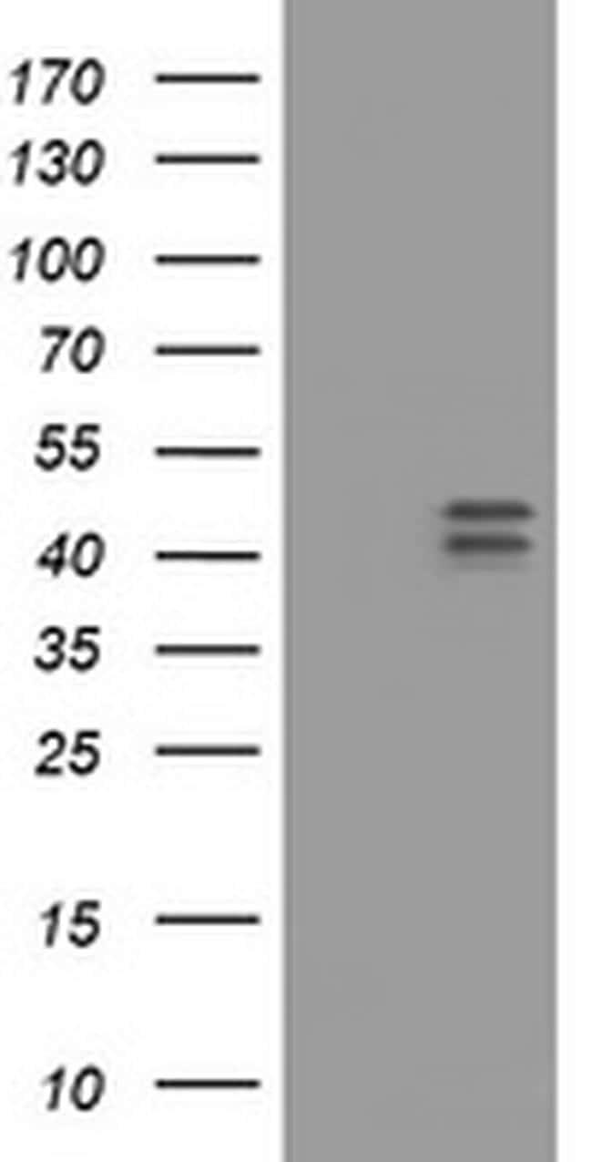 HOXD10 Antibody in Western Blot (WB)