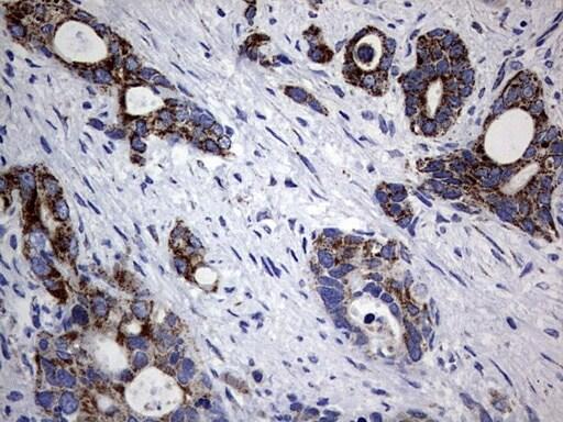 PIK3CD Antibody in Immunohistochemistry (Paraffin) (IHC (P))