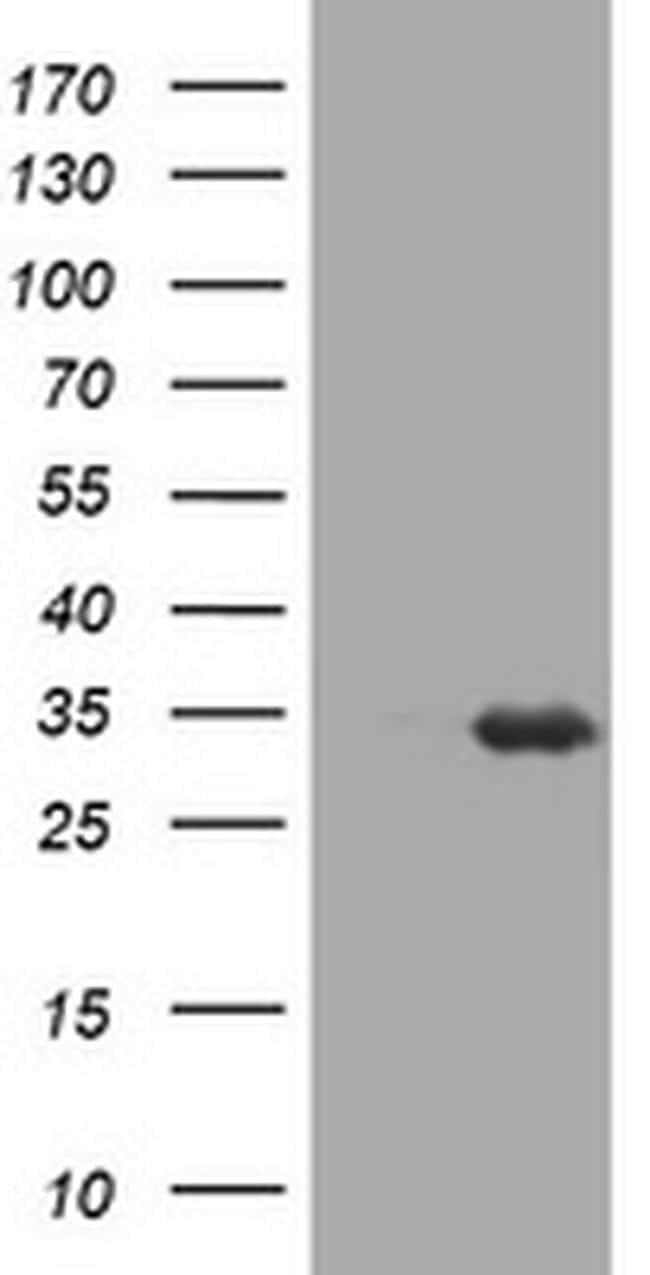 USP44 Antibody in Western Blot (WB)
