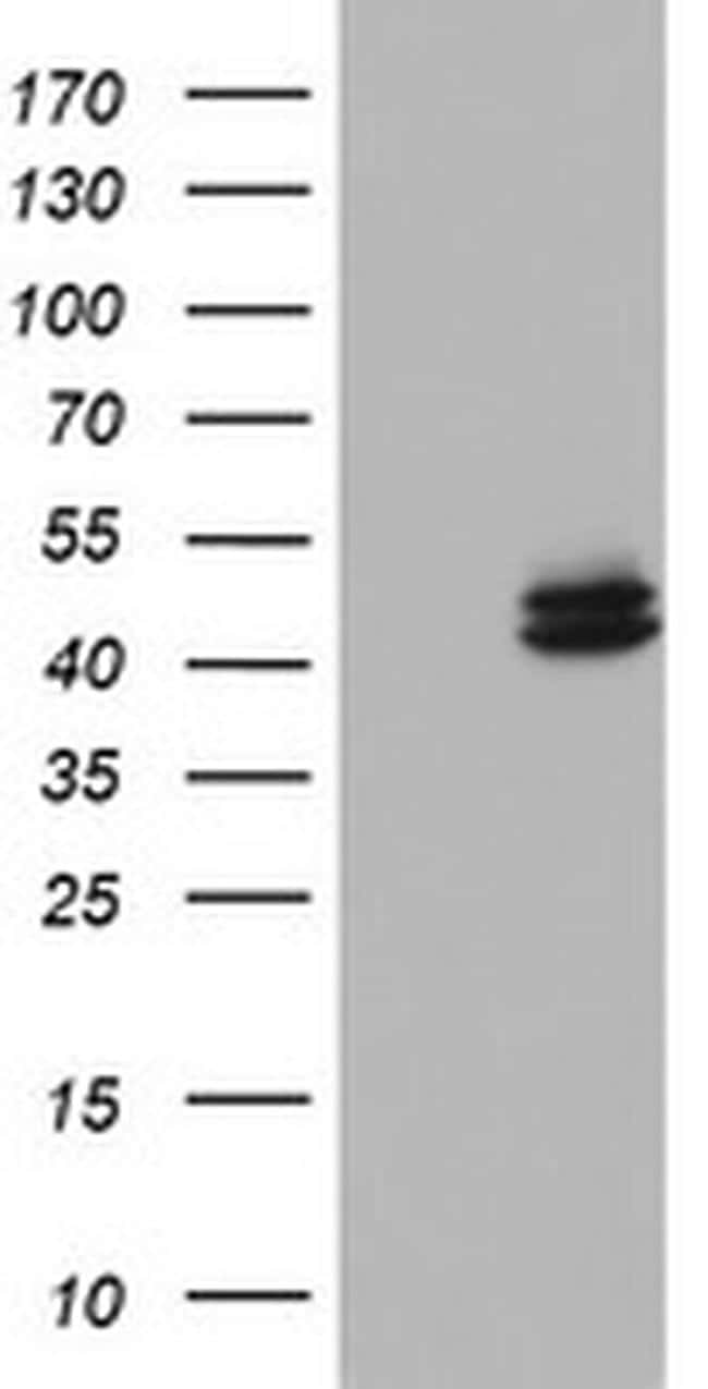 OTC Antibody in Western Blot (WB)