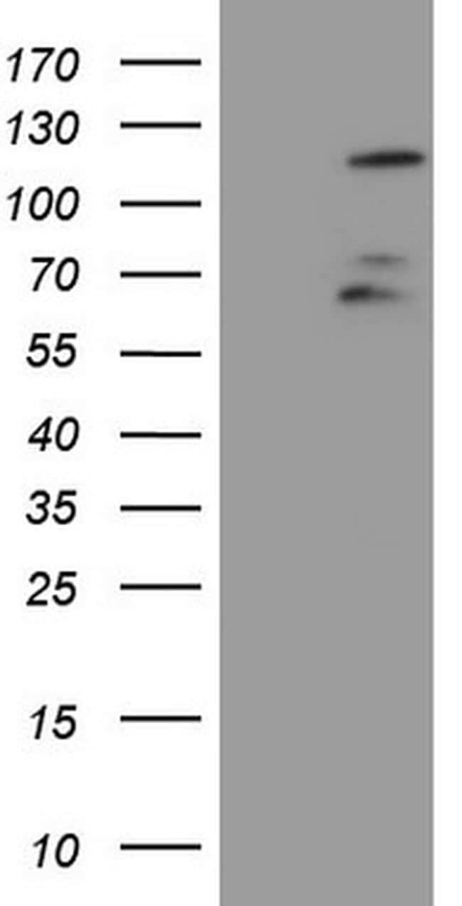 FBXW7 Antibody in Western Blot (WB)