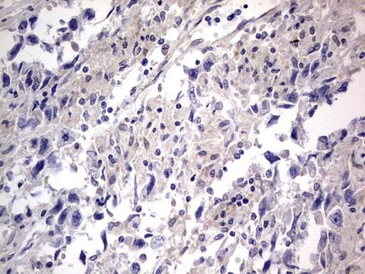 PRRX1 Antibody in Immunohistochemistry (Paraffin) (IHC (P))