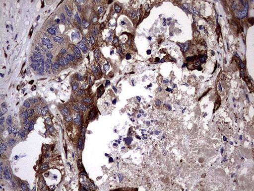 PLOD2 Antibody in Immunohistochemistry (Paraffin) (IHC (P))