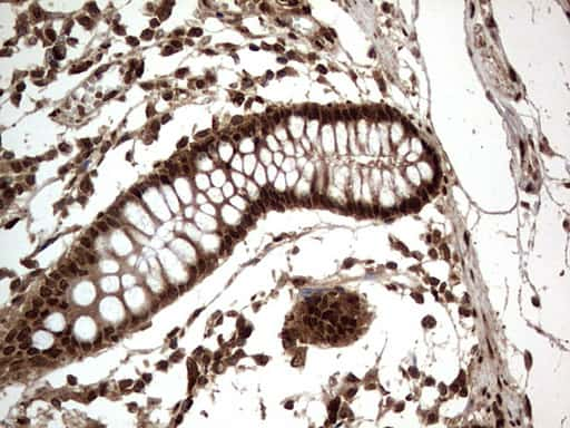 Macro H2A.2 Antibody in Immunohistochemistry (Paraffin) (IHC (P))